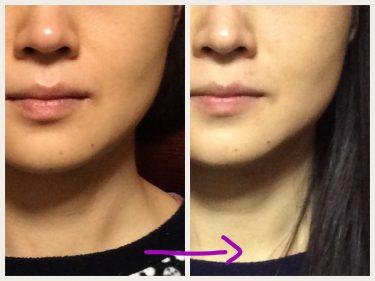 お顔の表面的なケアだけでは効果半減です